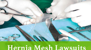 Hernia mesh lawsuit lawyer